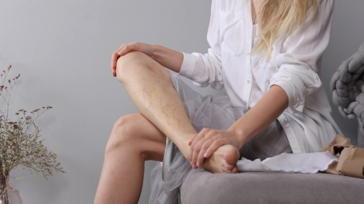 Varicose Veins & Cold Weather: What You Should Know
