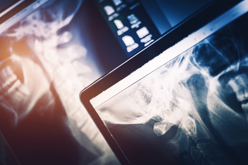 Radiology On The Rise: Advancements In The Field