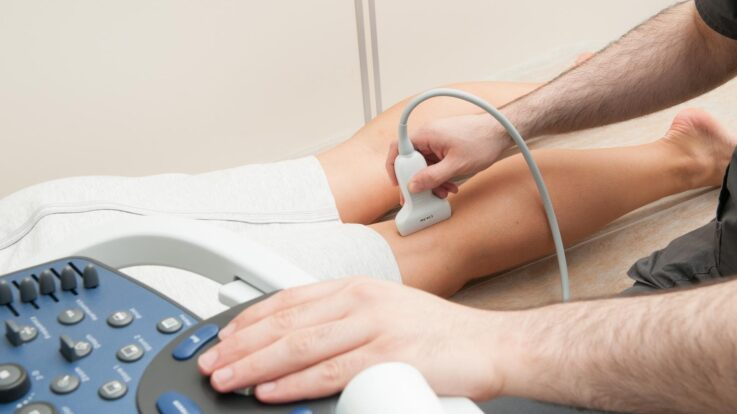 Varicose Veins: Finding Relief From the Summer Heat